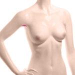 аксиллярный доступ - операция по увеличению груди