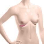 разрез под грудью во время операции по увеличению груди