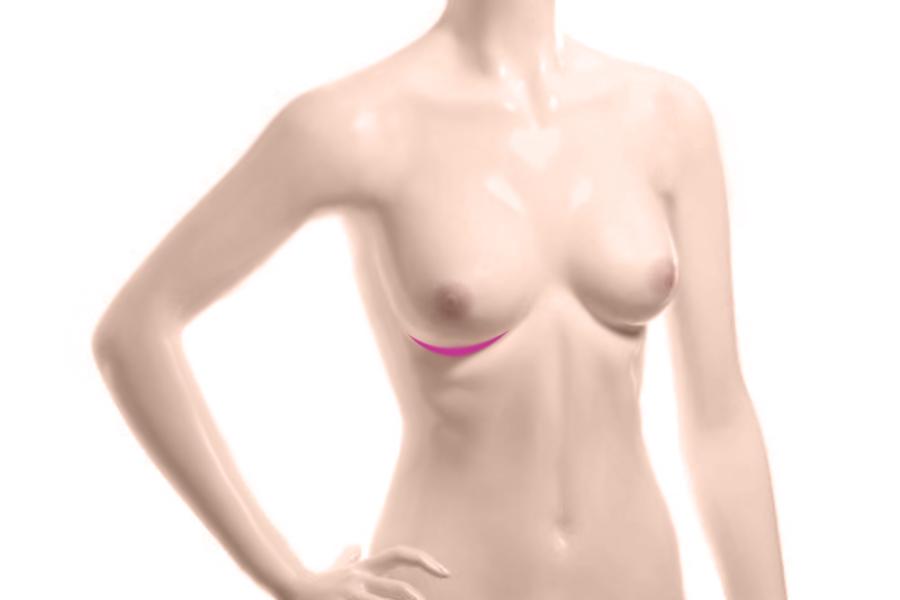Увеличение груди: разрез под грудью
