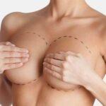 маммопластика - кредит и рассрочка