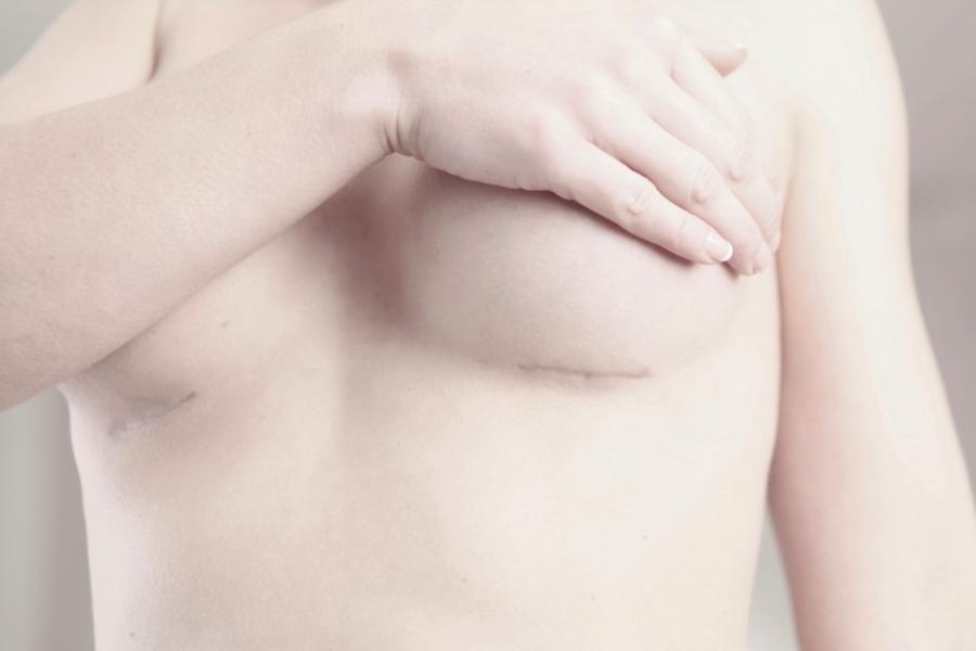 Остаются ли шрамы после увеличения груди?
